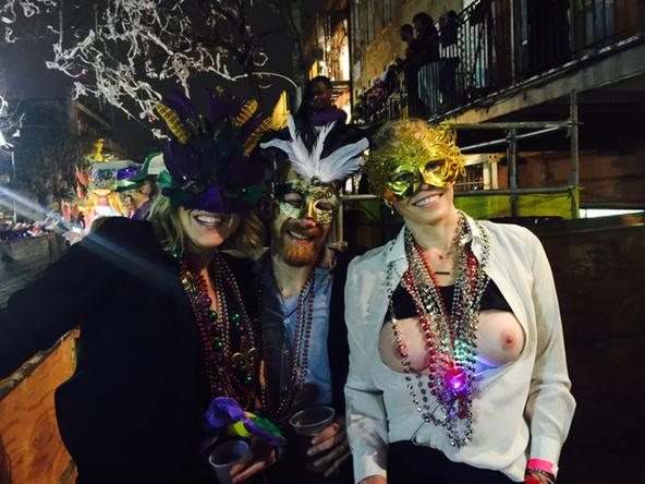 Chelsea Handler Tits (1 Photo)