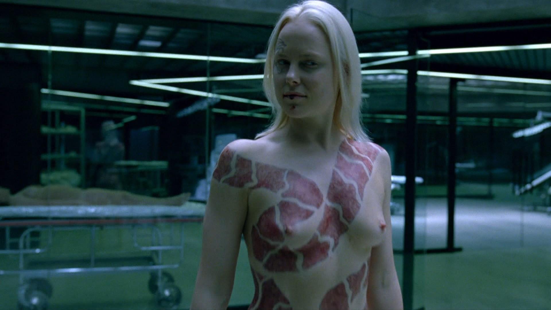 Bridget the midget implants